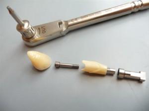 Dentalent-Tandtechnisch-Laboratorium_23621_image